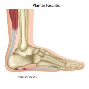 Foot with skeleton shown, plantar fascitis is labelled on food